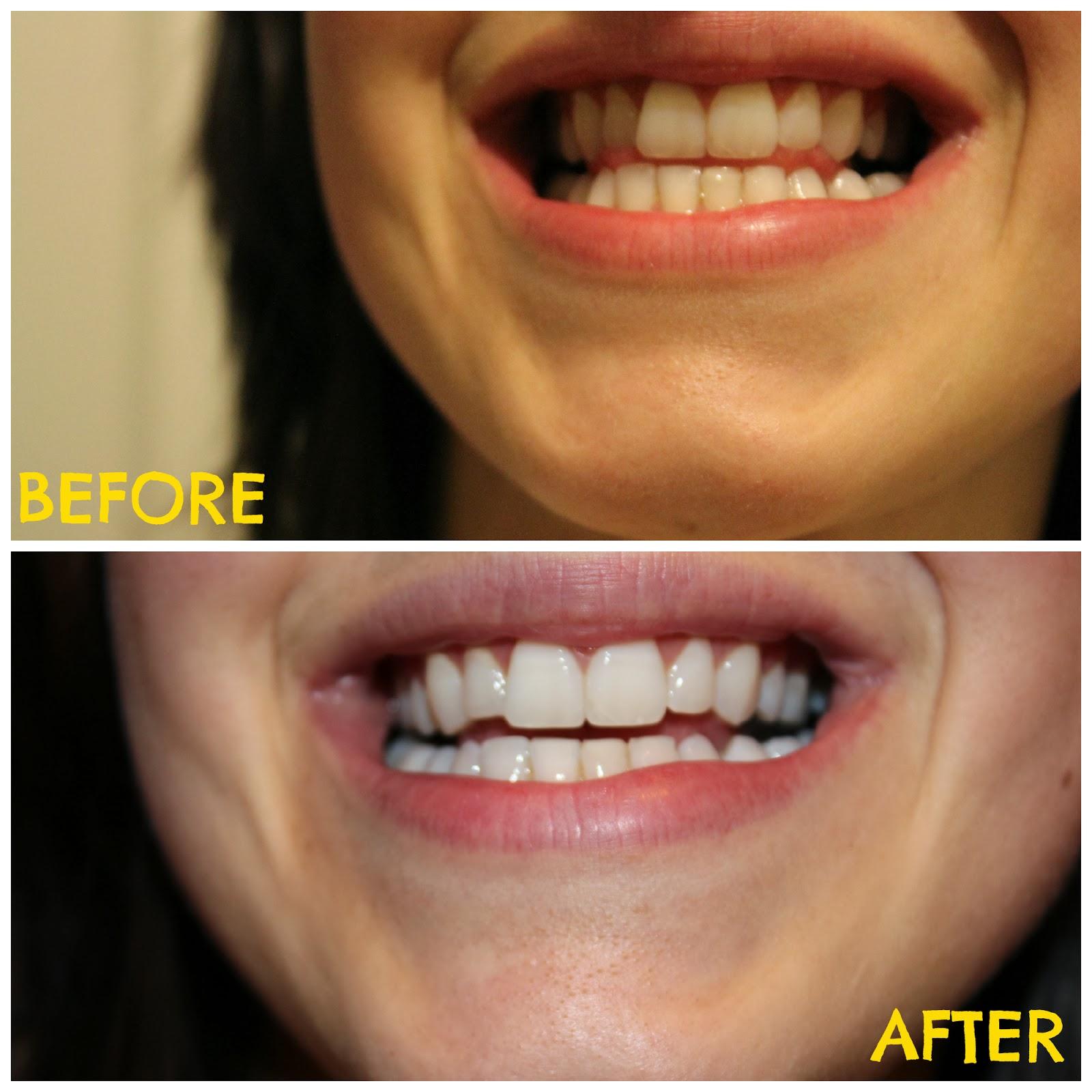 Clareamento Dental Antes e Depois (com Pasta Branqueadora Caseira)