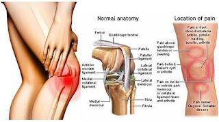 Masalah Sakit Lutut Yang Ramai Ambil Mudah Sehingga Kritikal | Sakit lutut tidak mengira usia mahupun jantina apabila kesakitan menyerang seseorang. AM sendiri masih lagi muda dalam awal 30-an juga tidak terkecuali daripada masalah sakit lutut. Apa tidaknya dua kali seminggu memberi tekanan kepada badan dan lutut sepenuhnya sehingga tahap maksima.  Secara umumnya lutut merupakan bahagian sendi tubuh yang cukup mudah diserang kesakitan yang boleh berpunca daripada kecederaan, penyakit dan beberapa factor lain yang berkait. Ini kerana lutut berada pada titik berat badan dan hanya disokong oleh kaki.  Anatomi Lutut Manusia  Di bahagian dalam sendi, terdapat rongga-rongga sendi yang dipenuhi dengan cecair sendi. Cairan sendi ini bertindak sebagai pelincir antara sendi daripada bergesel. Jika sendi-sendi lutut bergesel ketika melakukan pergerakan, ini boleh menyebabkan sakit lutut kiri dan kanan kaki. Masalah Sakit Lutut Yang Ramai Ambil Mudah Sehingga Kritikal  Setiap tulang pada bahagian sendi lutut dihubungkan dengan otot-otot yang ada di sekelilingnya. Ikatan-ikatan urat yang dipanggil ligament ini menjadi penghubung dan pengikat antara tulang. Manakala, urat yang menyambungkan otot dan tulang dinamakan sebagai tendon. Di bahagian sendi lutut ini, terdapat banyak banyak ikatan urat ini dan sangat kompleks.  Kecederaan Pada Lutut AM pernah menyaksikan sendiri apabila kawan AM yang hamper seusia dengan AM mengalami masalah ligament pada lutut hanya kerana tersalah berlari semasa sesi latihan bela diri dahulu. Bukan itu sahaja ramai kenalan AM yang mengalami masalah lutut terutama bagi mereka yang aktif bersukan seperti bola sepak dan futsal.  Bagi sahabat-sahabat Am yang aktif bersuka, nasihat AM kepada kalian adalah berhati-hati apabila bersukan nanti. Hanya kerana nak sihat badan pula sakit nanti. Masalah Sakit Lutut Yang Ramai Ambil Mudah Sehingga Kritikal