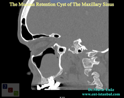 The Mucous Retention Cyst of The Maxillary Sinus