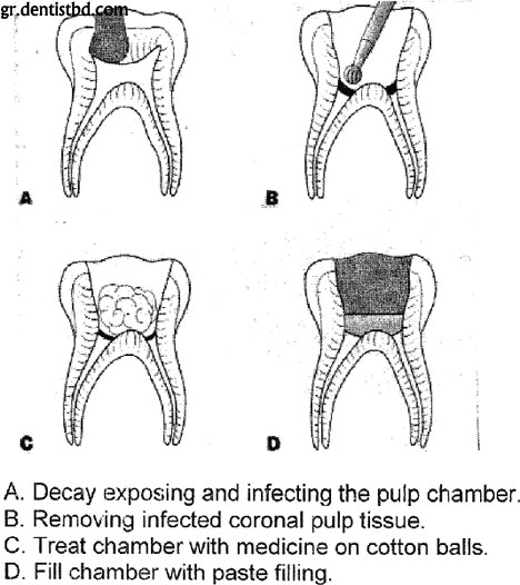 pulpotomy Vital Pulp Therapy: Requirements for Success