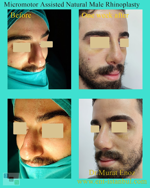 crooked nose job, twisted nose aesthetic,Asymmetric nose operation,Rhinoplasty For Men Istanbul,Micro-Motor Assisted Rhinoplasty Operation Istanbul,