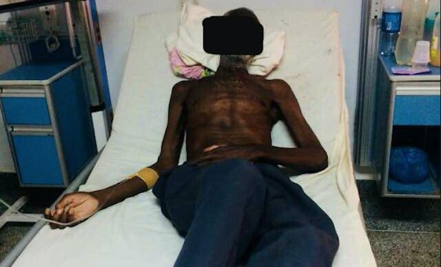 Hombre murió de Lepra en Venezuela como si estuviéramos en el siglo pasado