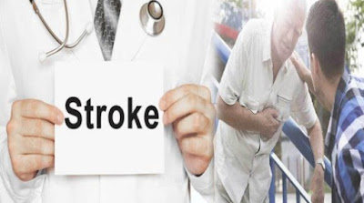 Stroke – Penyakit Mematikan yang Sangat Membahayakan Kesehatan!