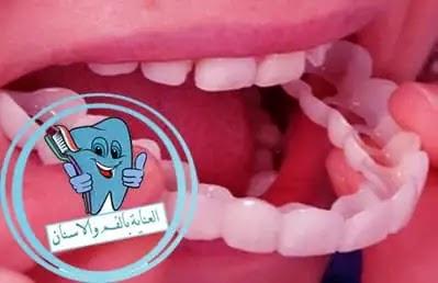 تركيبات الاسنان, تركيب الاسنان, طقم اسنان, انواع تركيبات الاسنان, تركيب الاسنان الامامية, اضرار تركيبات الاسنان المتحركة, تركيب الاسنان المتحركة, طقم اسنان متحرك, عيوب طقم الاسنان المتحرك, طقم الاسنان المطاط