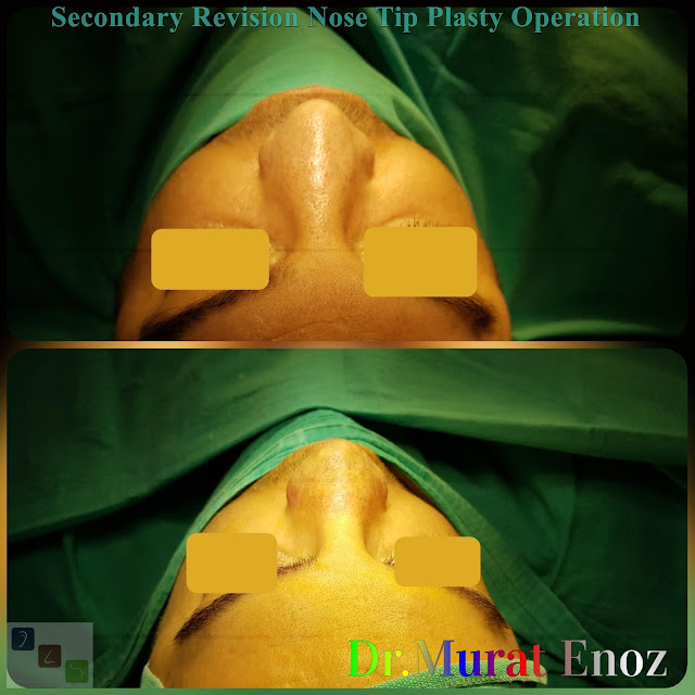 Revision Nose Tip Plasty in Men Istanbul