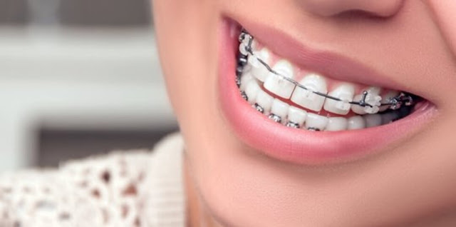 Proses Pemasangan Behel Gigi Yang Baik Dan Benar