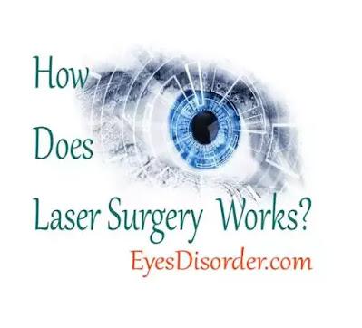 Laser surgery, vision correction surgery