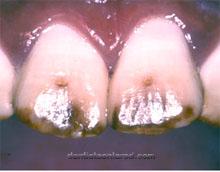 "<Imgsrc =""fluorosis-dental-Cuba.jpg"" width = ""220"" height ""172"" border = ""0"" alt = ""Alteración dental por fluorosis."">"