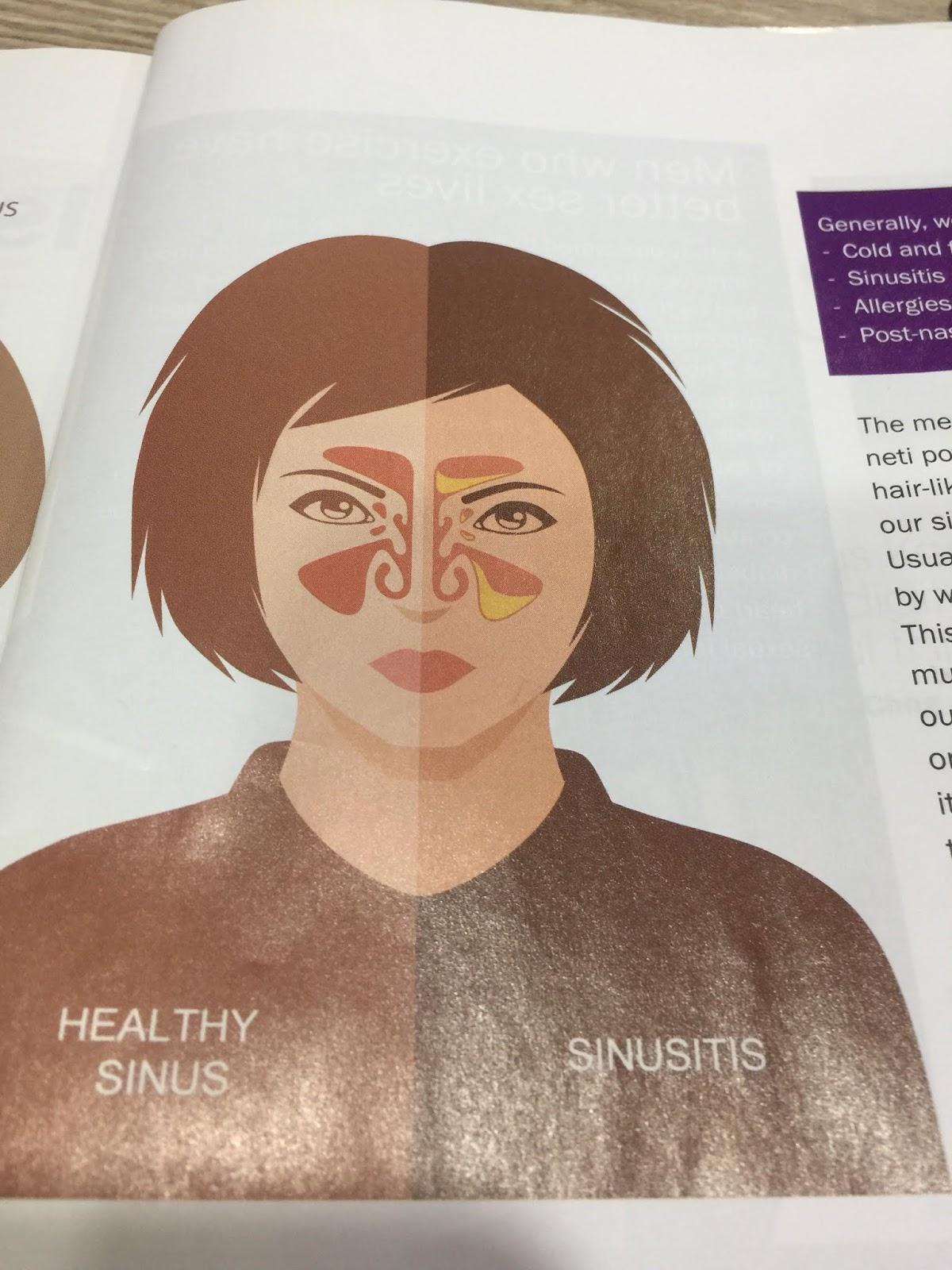 bahaya sinusitis, sakit kepala, pencegahan sinusitis, akibat penyakit sinusitis