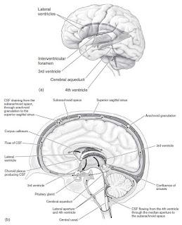 Hydrocephalus anatomy