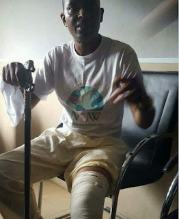 Photos: Akan Week, founder of collapsed Akwa Ibom church broke leg, set to be amputated
