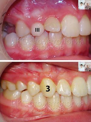 До и после лечения ретенции клыка вид справа