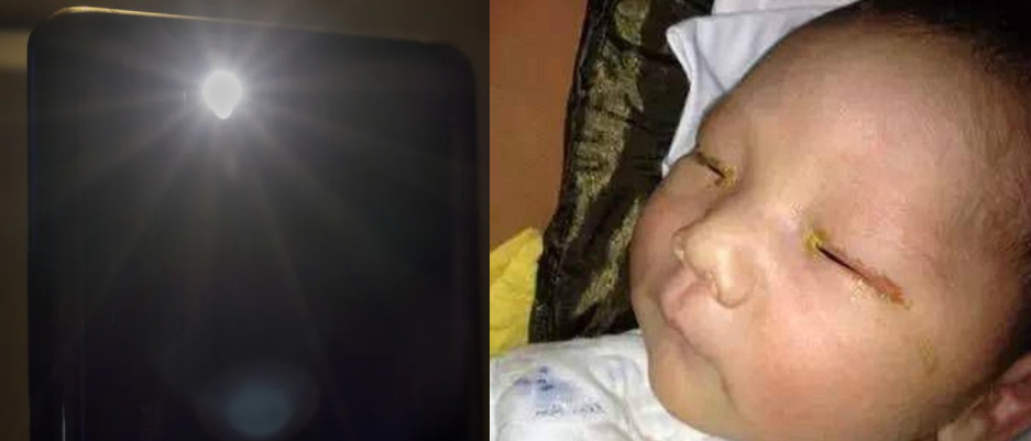 Baby, nabulag matapos kunan ng litrato gamit ang phone na may flash