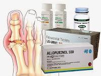 Allopurinol, Penangkal Asam Urat. Menurut dr. Lucky Aziza, SpPD-KGH