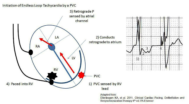 pacemaker system diagram