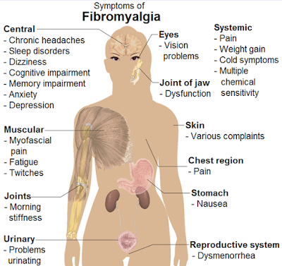 Fibromyalgia Symptoms female body