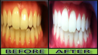 can-yellow-teeth-become-white