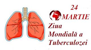 24 martie: Ziua Mondială a Tuberculozei