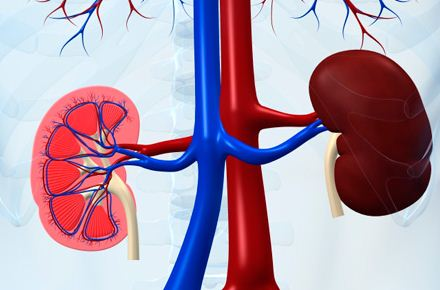 Stage 4 Kidney Disease Life Expectancy Without Dialysis