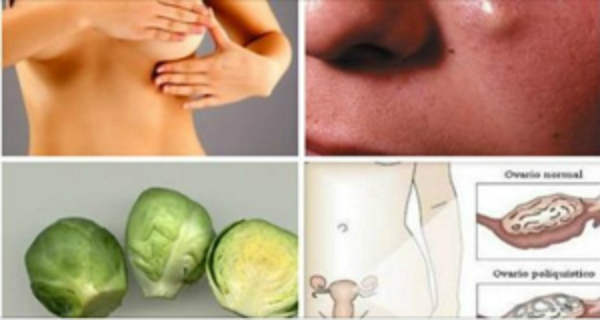Remedies For Cysts In The Breast And Ovaries!