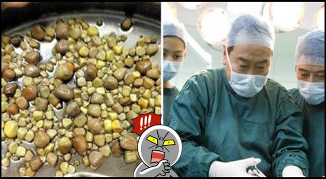 """Dokter Sampai Syok Harus Mengeluarkan 420 Batu dalam Ginjalnya, Ternyata Penyebabnya Karena Ia Suka """"Makan Ini"""" Tiap Hari"""
