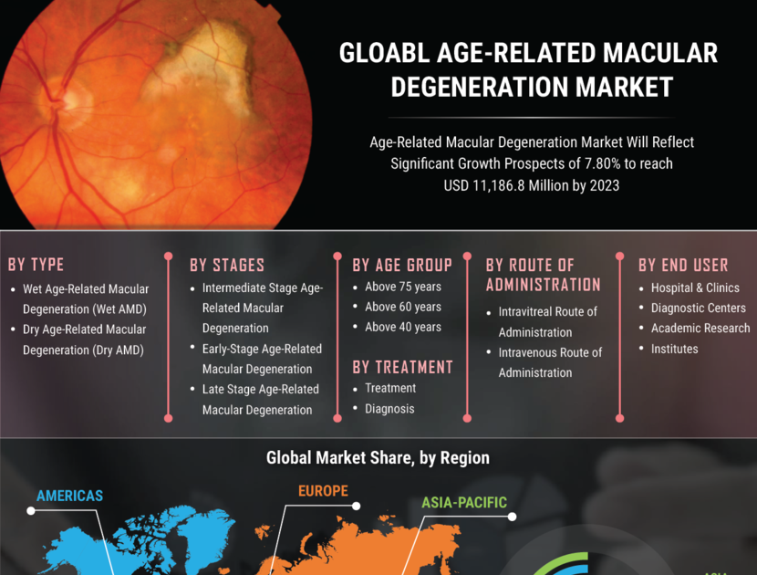Age-related Macular Degeneration (Amd) Market Share, Demand, Industry Analysis, Key Player profile, Regional Outlook 2027