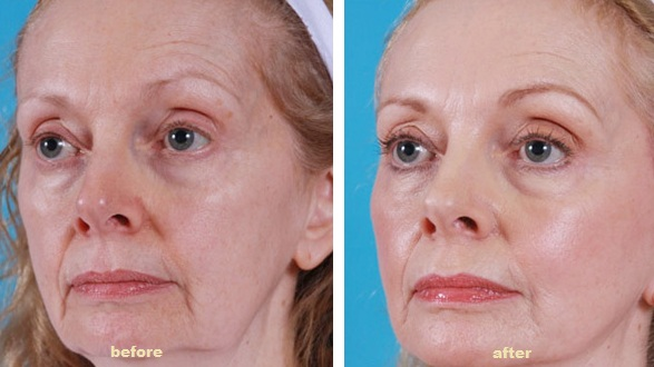 2 pics of the same woman showing before and after the thread lift treatment on facial skin like mid face and nasolabial folds