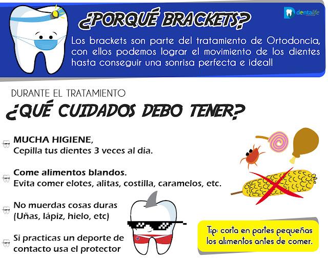 Cuidados durante la Ortodoncia