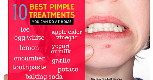Best pimple treatments you can do at home