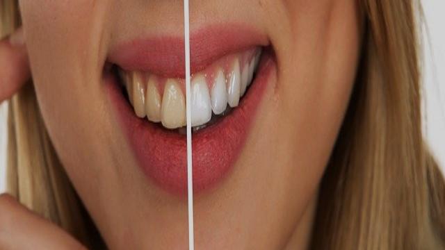 اهم نصائح للحفاظ على أسنانك وكيف تعتني بها يوميا