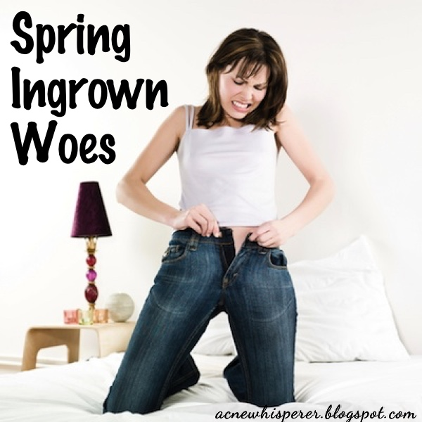 The cause of springtime ingrowns could be your clothes.