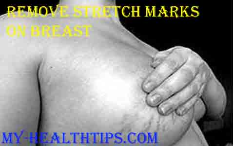 Remove Stretch Marks On Breast