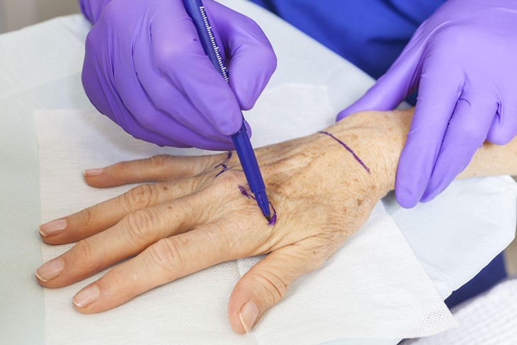 Fisioterapia e antienvelhecimento da pele