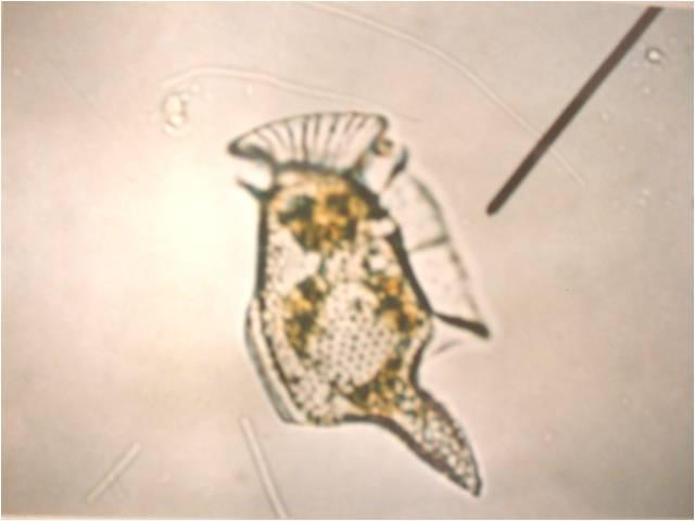Bahaya Blooming Plankton / Harmful Algae Blooms (HABs