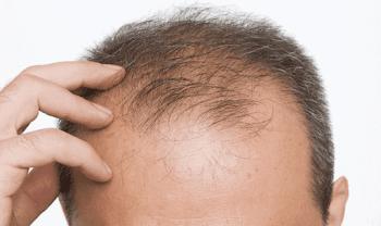 Erkek Tipi Saç Dökülmesine Karşı 2 Bitkisel Çözüm