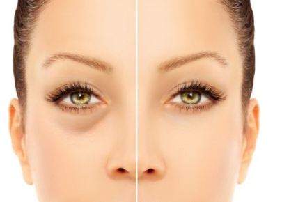 Tips to Reduce Under Eye Circles - Skin care For You
