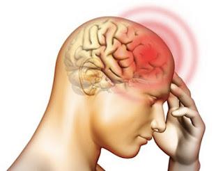 Những triệu chứng đau đầu biết sớm có thể điều trị