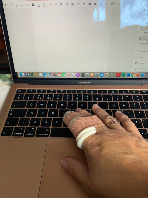 typing with broken finger