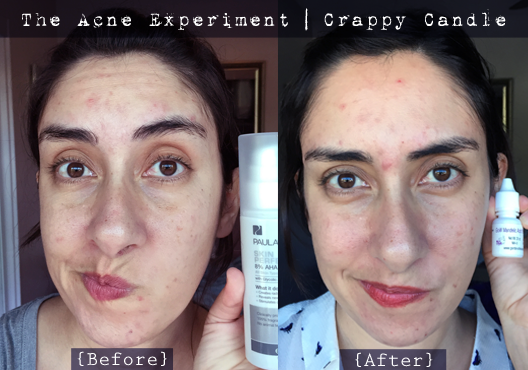 Mandelic Acid Before & After :: The Acne Experiment