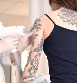 How do you remove unwanted tattoos?