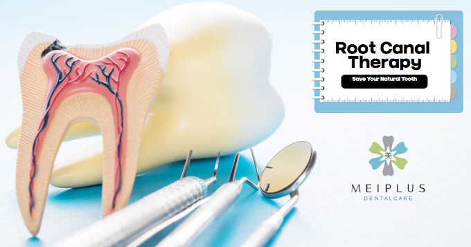 Root Canal Therapy-Save Your Natural Tooth