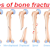 What is Bone: fracture of bone, causes of fracture, types of reduction, phases of repair process, healing time & remodeling