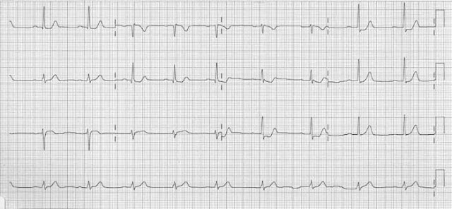 ECG for question
