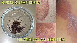 obat gatal kulit yang sudah menahun