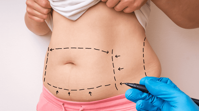 liposuction for fat loss by barbies beauty bits