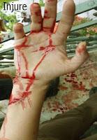 injure