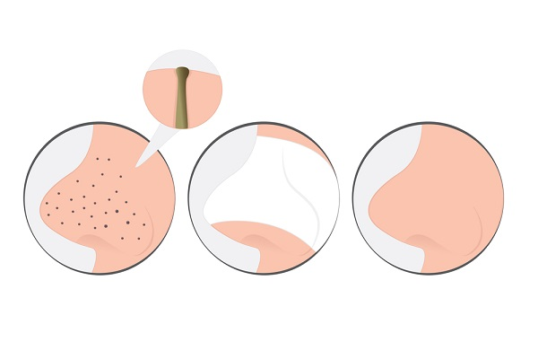 Acne Blackhead Treatment, How to Heal Yourself
