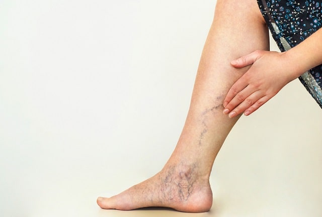 non-surgical treatment options varicose veins ache