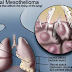 How You Can Improve Your Mesothelioma Prognosis