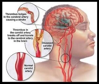 Obat Stroke Terampuh & Terbaik Sembuh Dalam Hitungan Hari
